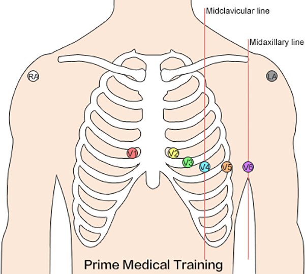 The Ultimate 12 Lead ECG Placement Guide With Illustrations